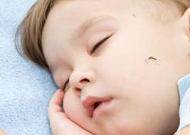 Un remedio eficaz para las picaduras de mosquitos de los niños